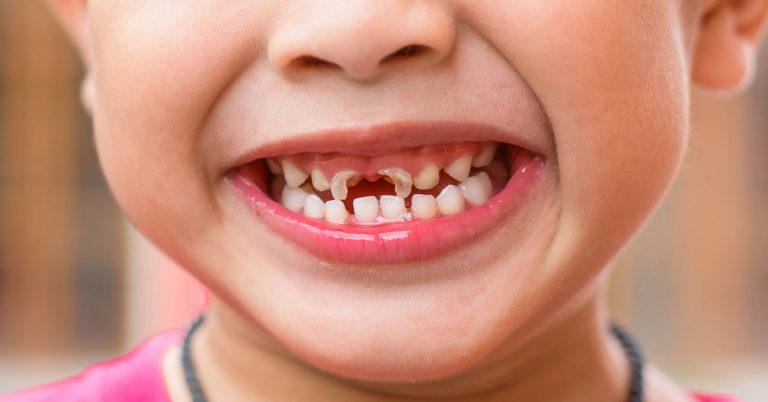 How to prevent tooth decay in kids | Pediatric Dentist in Dubai