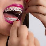 Flossing with Braces – is it right or wrong?