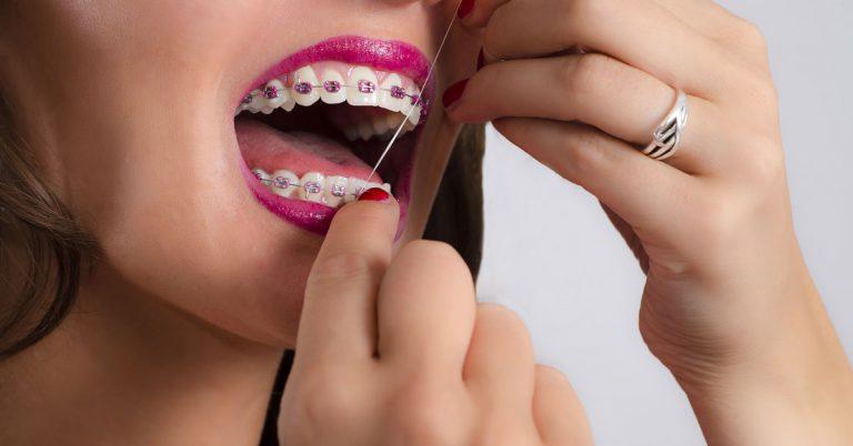 flossing teeth with braces