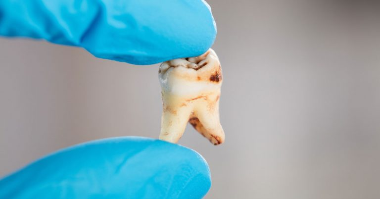 Early caries intervention is the best way to deal with decayed tooth