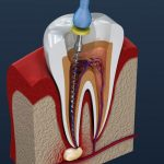 Root Canal therapy – A brief look out