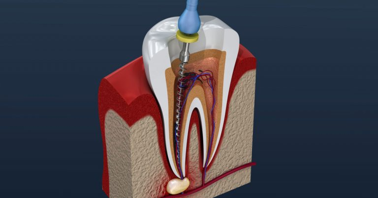 Root Canal therapy – A brief look out | ROOT CANAL TREATMENT IN DUBAI
