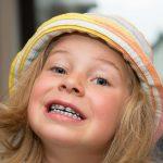 Special needs children Vs Orthodontic treatment