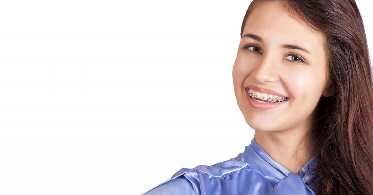 Orthodontic bonding of Braces – How long is the Process | Orthodontics In Dubai