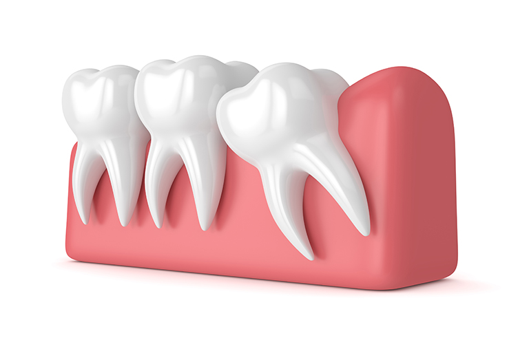 Surgical removal of wisdom teeth in orthodontic treatment