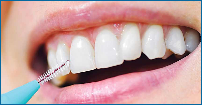 Usage of interdental floss or brushes