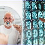 Alzheimer's connection between oral health and brain