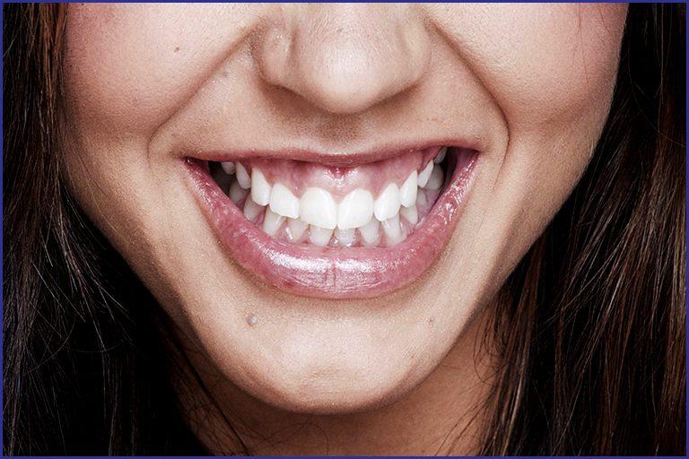 Gum Line Contouring For a Shapelier Smile