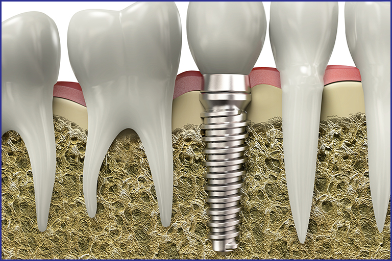 What is dental implant Osseo-integration?