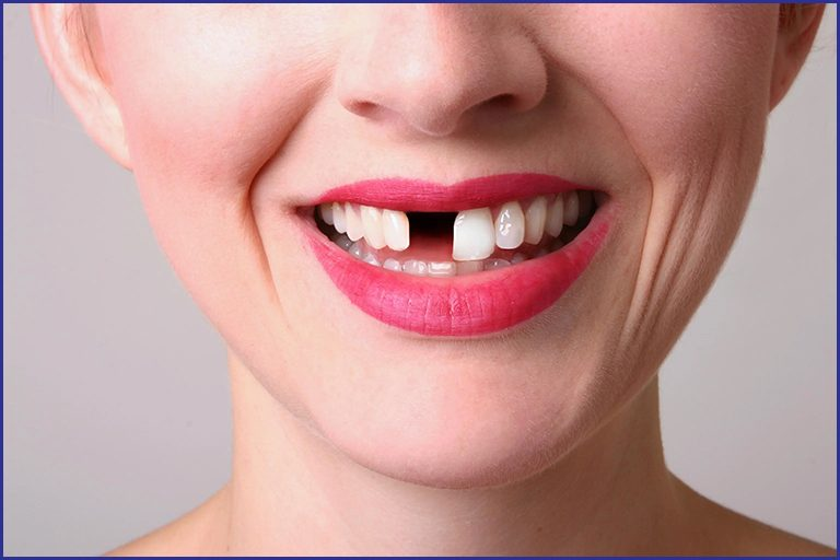 women with missing teeth