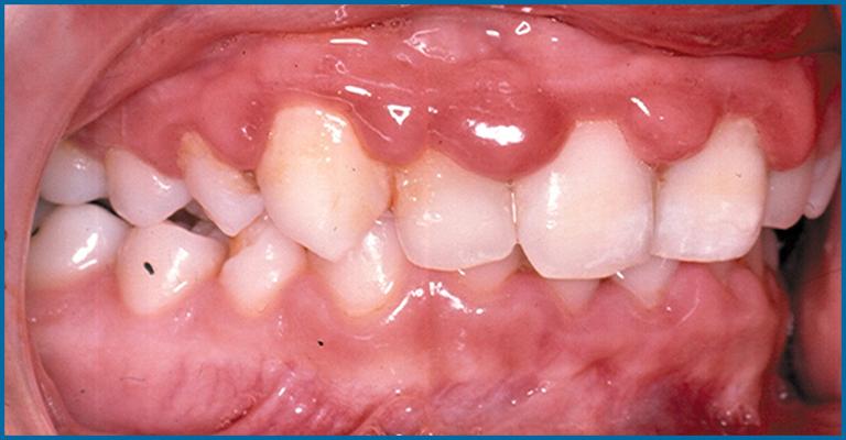 gum disease in child