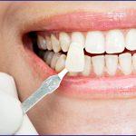 Dental veneers – a single procedure for multiple concerns