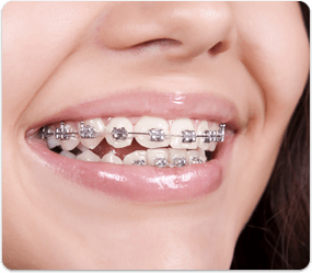 orthodontic treatment in Dubai