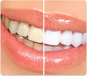 Dental scaling and polishing