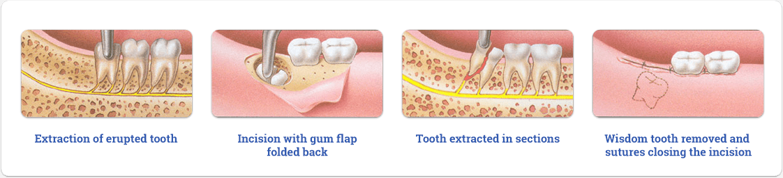 Surgical Tooth Extraction Procedure
